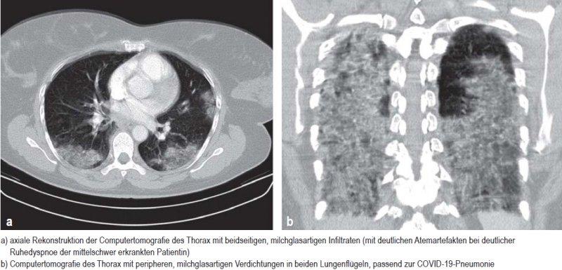 a) axiale Rekonstruktion der Computertomografie des Thorax mit beidseitigen, milchglasartigen Infiltraten (mit deutlichen Atemartefakten bei deutlicher Ruhe dyspnoe der mittelschwer erkrankten Patientin); b) Computertomografie des Thorax mit peripheren, milchglasartigen Verdichtungen in beiden Lungenflügeln, passend zur COVID-19-Pneumonie