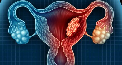 Oraler GnRH-Antagonist Relugolix vermindert Blutverlust bei Uterusmyomen