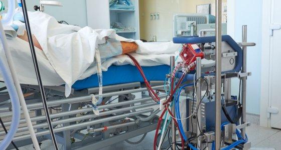 Die extrakorporale Membranoxygenierung (ECMO) wird bei schwerem Lungenversagen eingesetzt. /Kiryl Lis adobe.stock.com