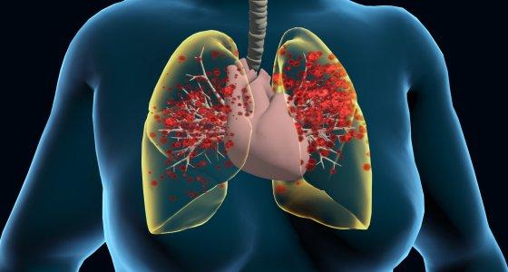 Lunge von SARS-CoV-2 befallen /MegGraphic, stock.adobe.com