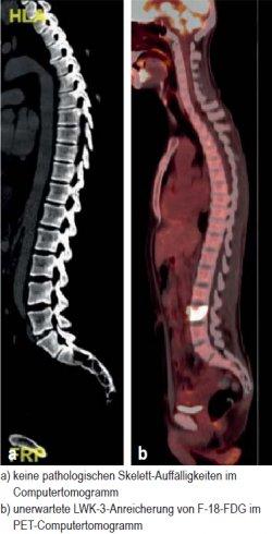 a) keine pathologischen Skelett-Auffälligkeiten im Computertomogramm; b) unerwartete LWK-3-Anreicherung von F-18-FDG im PET-Computertomogramm