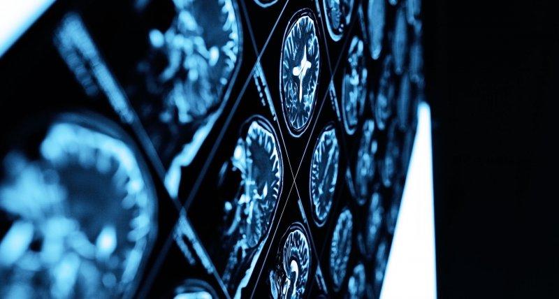 Berichte über neurologische Komplikationen bei COVID-19