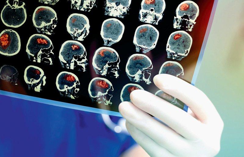 Glioblastompatienten können von einer TTF-Behandlung profitieren. Foto: sudok1/stock.adobe.com