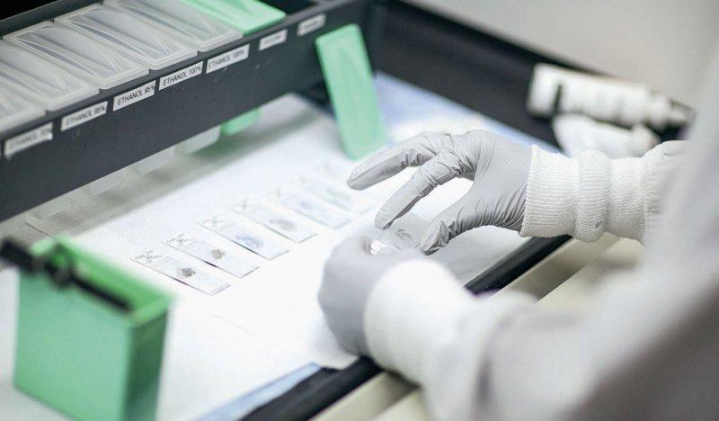 Der Biomarkertest Oncotype DX wird bereits von der gesetzlichen Krankenversicherung bezahlt. Foto: Genomic Health