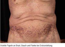 Violette Papeln an Brust, Bauch und Flanke bei Erstvorstellung