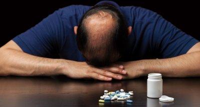 Androgenetische Alopezie: Erhöht Finasterid das Suizidrisiko?