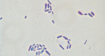 Der Zusammenhang zwischen Genetik, Darmmikrobiom und Multipler Sklerose