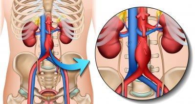 Bauchaortenaneurysma: Bessere Operationsergebnisse in Zentren mit hoher Fallzahl