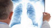 Post-COVID-Syndrom: Viele Patienten haben Einschränkungen der Lungenfunktion