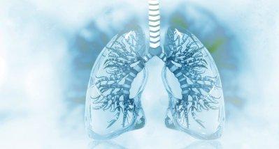 COVID-19: 2 Phänotypen mit Lungenversagen haben unterschiedliche Mortalität