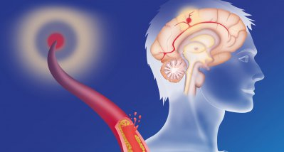 COVID-19: Impfstoff von Astrazeneca erhöht Risiko auf venöse Thromboembolien nur leicht