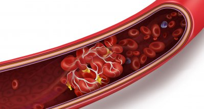 VITT: Frühzeitige Behandlung verhinderte Thrombosen nach Coronaimpfung