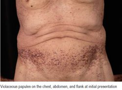 Violaceous papules on the chest, abdomen, and flank at initial presentation