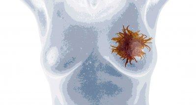 Studie: Statine könnten Schäden der Chemotherapie am Herzen verhindern