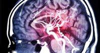 Studie: Erhöhte Sterblichkeitsrate bei Schlaganfällen während erster Coronawelle