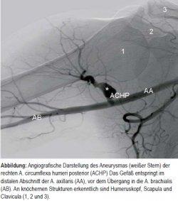 """""""Volleyball""""-Aneurysma der Arteria circumflexa humeri posterior"""
