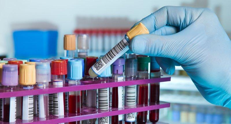 SARS-CoV-2: Serumtherapie enttäuscht in der RECOVERY-Studie