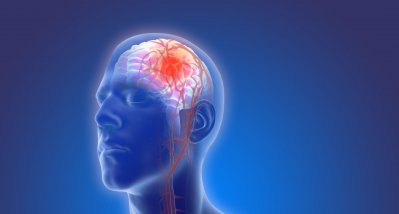 Framingham-Studie: Häufigkeit von Schlaganfällen nach TIA ist deutlich zurückgegangen