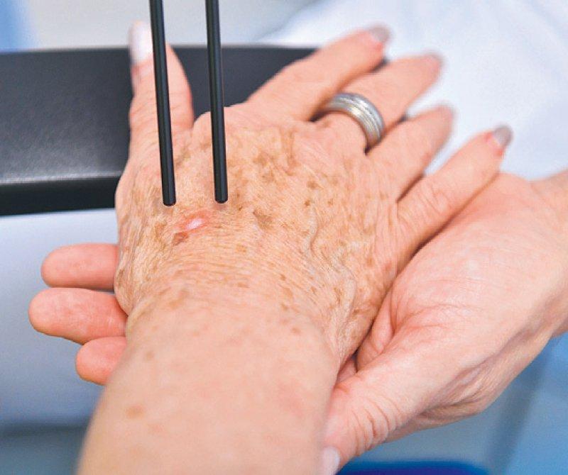 Das Curriculum definiert die Anforderungen für Nichtdermatologen, um Laserbehandlungen durchzuführen. Foto: picture alliance/dpa/Uli Deck