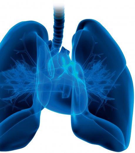 COPD und KHK