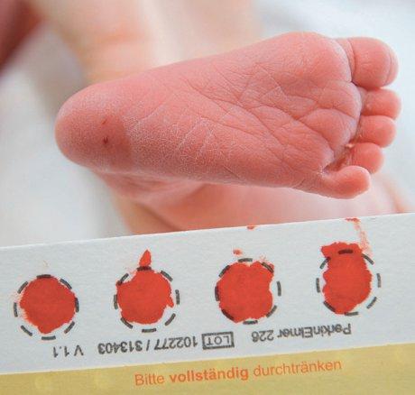 Neugeborenen-Screening auf angeborene...