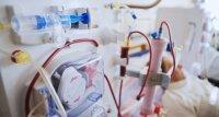 Hohe COVID-19-Sterblichkeit bei dialysepflichtigen Patienten