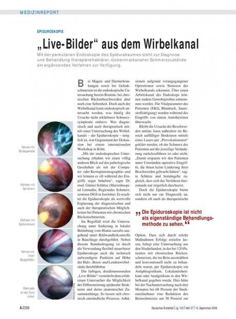 """Epiduroskopie: """"Live-Bilder"""" aus dem Wirbelkanal"""