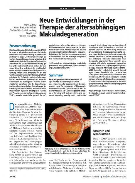 Neue Entwicklungen in der Therapie der altersabhängigen Makuladegeneration