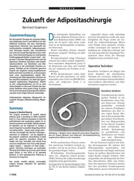 Zukunft der Adipositaschirurgie