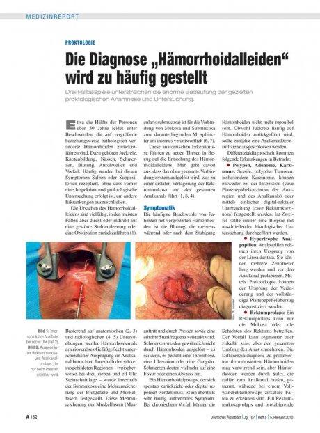 """Proktologie: Die Diagnose """"Hämorrhoidalleiden"""" wird zu häufig gestellt"""
