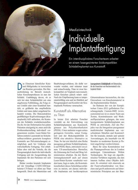 Medizintechnik: Individuelle Implantatfertigung