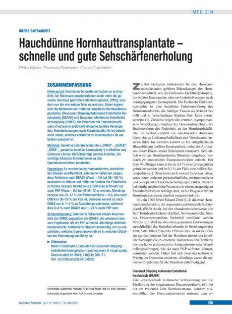 Hauchdünne Hornhauttransplantate – schnelle und...