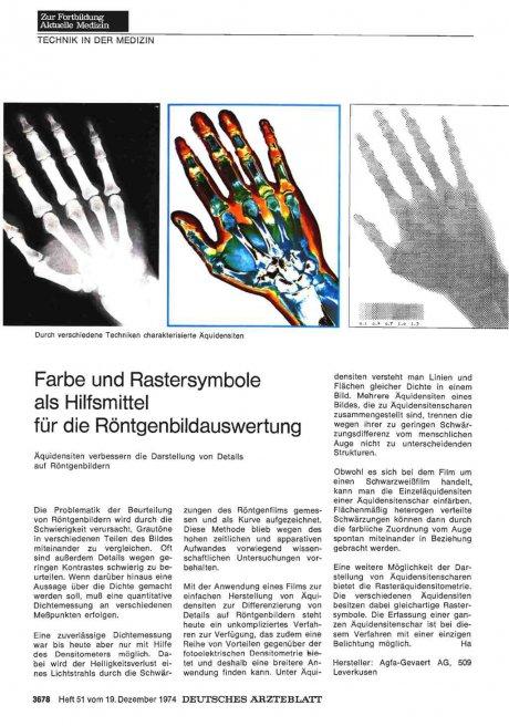 Farbe und Rastersymbole als Hilfsmittel für die Röntgenbildauswertung