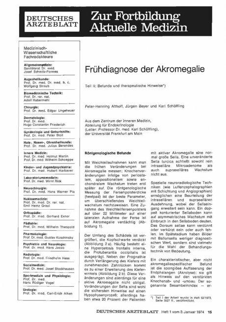 Frühdiagnose der Akromegalie: Teil II: Befunde und therapeutische Hinweise