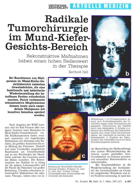 Radikale Tumorchirurgie im...