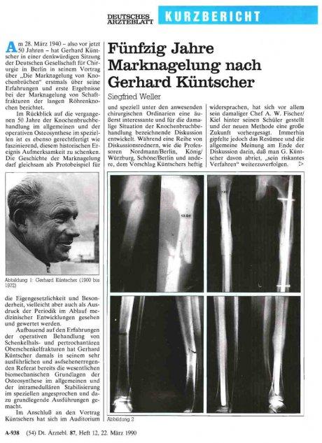 Fünfzig Jahre Marknagelung nach Gerhard Küntscher