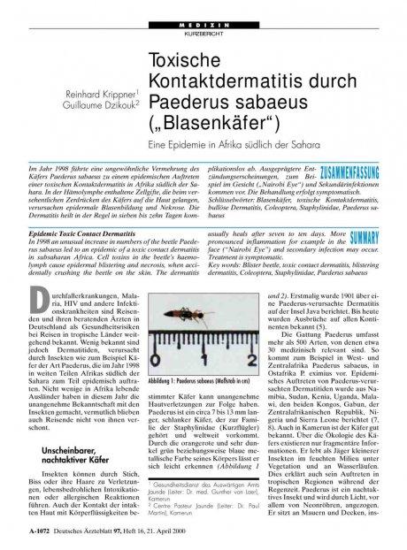Toxische Kontaktdermatitis durch Paederus sabaeus...