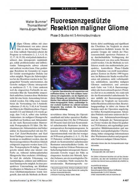 Fluoreszenzgestützte Resektion maligner Gliome