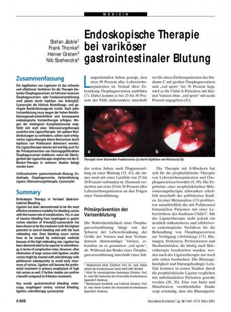 Endoskopische Therapie bei variköser...