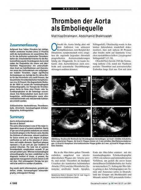 Thromben der Aorta als Emboliequelle