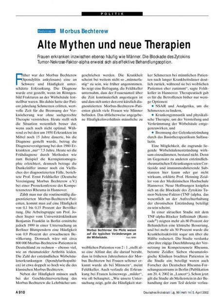 Morbus Bechterew: Alte Mythen und neue Therapien
