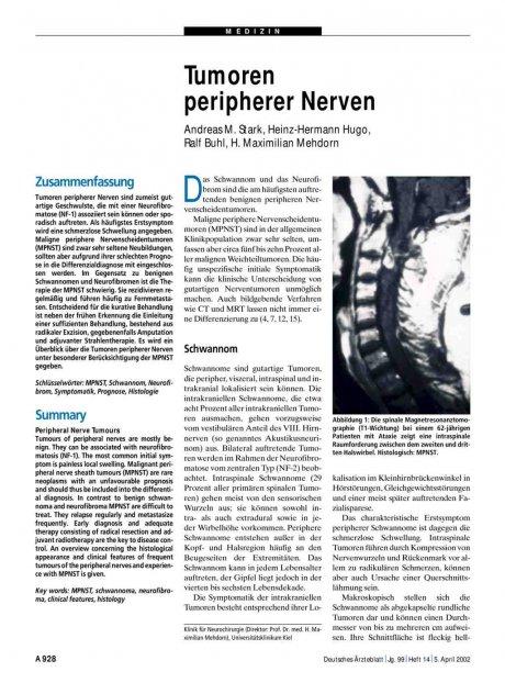 Tumoren peripherer Nerven