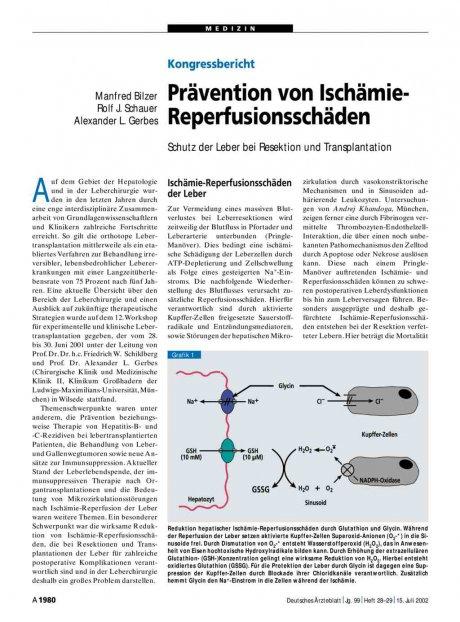 Prävention von Ischämie- Reperfusionsschäden