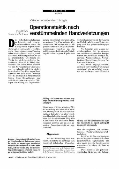 Wiederherstellende Chirurgie: Operationstaktik nach verstümmelnden Handverletzungen